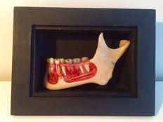 Anatomical model of the human jaw, ca 1900.