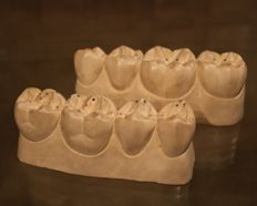 A pair of large plaster anatomical models of a row with molars