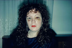 Nan Goldin (1953-) - 'Nan One Month After Being Battered' - 1984