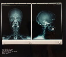 Damien Hirst - Selfportrait X-Ray