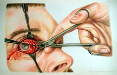O.Haab - Atlas and Outline of the Doctrine of Eye Operations - 1904