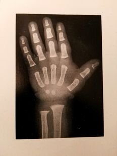 William W. Greulich & S. Idell Pyle - Radiographic Atlas of Skeletal Development of the Hand and Wrist - 1959.