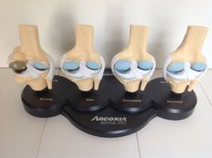 Anatomical model of four knee joints in a row, depicting different stages of osteoarthritis
