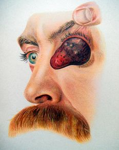 O. HAAB - Atlas of Outer Diseases of the Eye - 1899