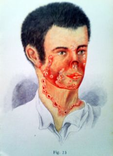 Dr. Karl Kopp - Atlas of skin diseases - 1893