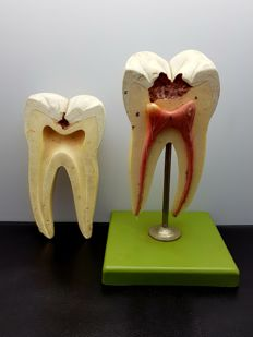 Medical / anatomical model of a molar
