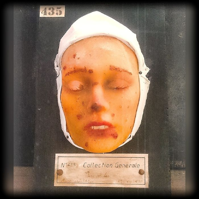 Replica Death Mask from 19th century original - Syphilis sufferer - 11×22×33 cm