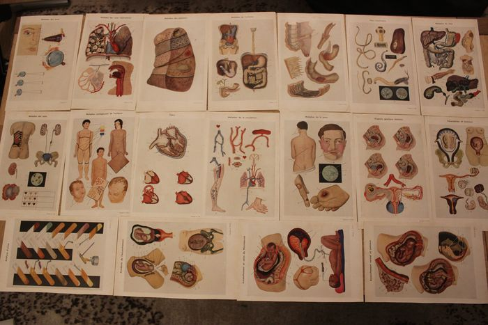 18 anatomical medical charts (diseases, childbirth etc) - Paper