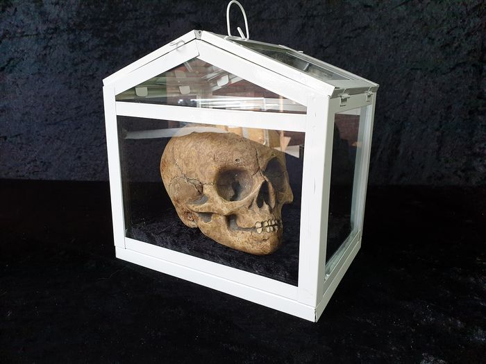 Anatomically correct replica - Child's Skull in glazed display case - n/a - 13.5×14×17.5 cm