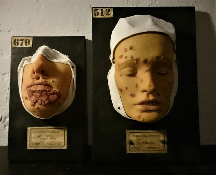 Replica Medical Study Heads as per 19th Century originals (2) - n/a - 10×22×33 cm