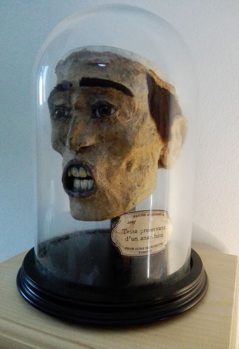 """""""Anarchist's"""" Head under Glass Dome - with skull cap and brain removed - interesting replica - - - 32×20×20 cm"""