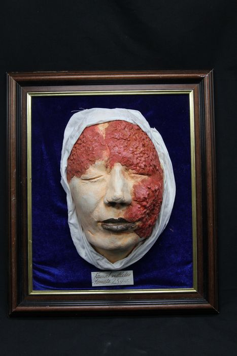 Victorian-style replica dermatology display piece - skin vesicles - 3D and life-sized - framed - - - 13×11×5 in